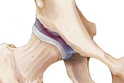 Как лечить растяжение тазобедренный сустав