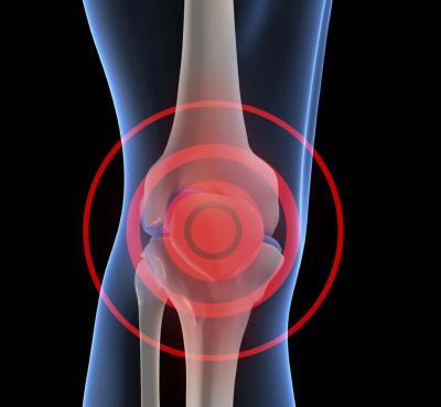 Дегенеративные изменения гиалинового хряща коленного сустава