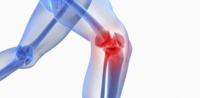 Изображение - Истончение хрящевой ткани коленного сустава 2563756