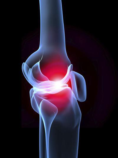 Изображение - Истончение хрящевой ткани коленного сустава 2563761