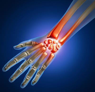 Изображение - Ушиб лучезапястного сустава лечение 2592708