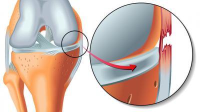 Изображение - Частичный разрыв медиальной коллатеральной связки коленного сустава 2595761