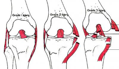 Изображение - Частичный разрыв медиальной коллатеральной связки коленного сустава 2595762