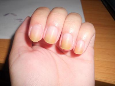 Начальная стадия грибка ногтей: симптомы, ранняя диагностика, методы лечения, профилактика