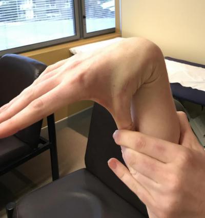Изображение - Гиперпластичность суставов у ребенка 2602811