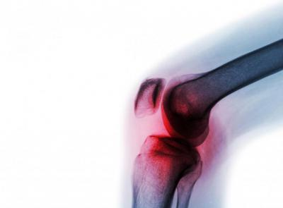 Лекарства от ревматизма суставов и мышц остеопороз артрит тазобедренного сустава его лечение