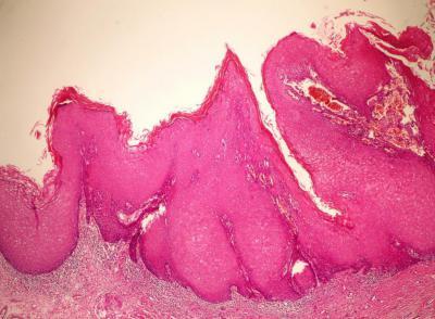 Половой член под микроскопом