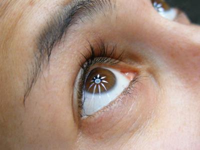 Кружится в глазах что делать