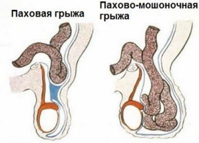 Во время секса небольшое уплотнение над левым яичком