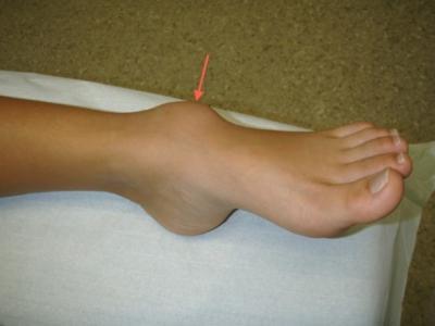 Гигрома голеностопного сустава на узи