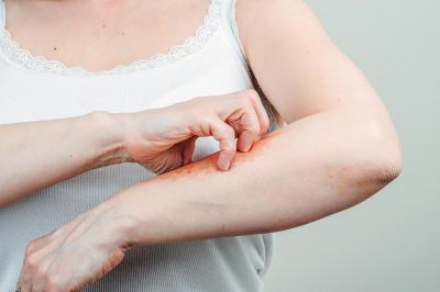 Педикулез кистей рук