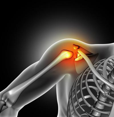 Изображение - Смещение плечевого сустава последствия 2731999