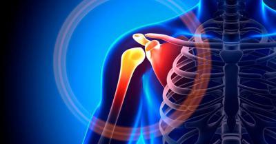 Изображение - Смещение плечевого сустава последствия 2732004