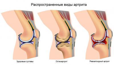 Изображение - Медицинские аппараты для суставов 2741801