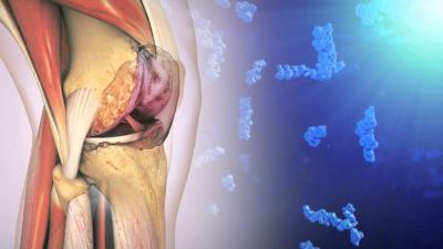 Какие есть препараты для лечения коленного сустава