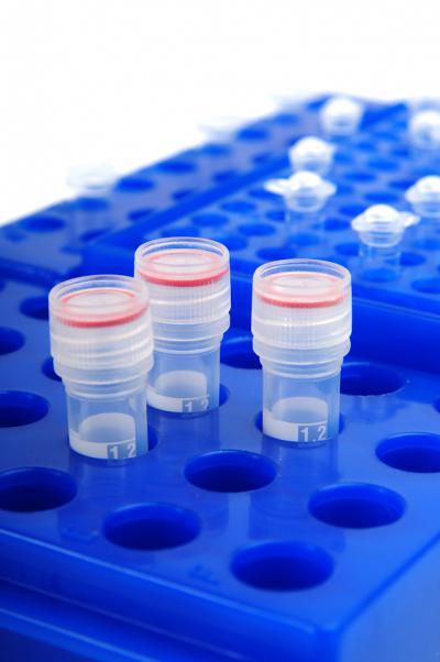 Липоидные тельца в спермограмме