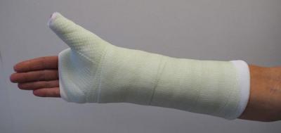 Изображение - Рентген перелома лучезапястного сустава 2978041