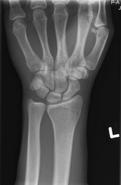 Изображение - Рентген перелома лучезапястного сустава 2978042