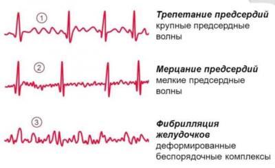 Что такое ремиссия в эпилепсии
