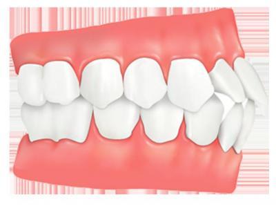 93b8643fd7ad5 Протрузия зубов: описание аномалии, причины и методы лечения