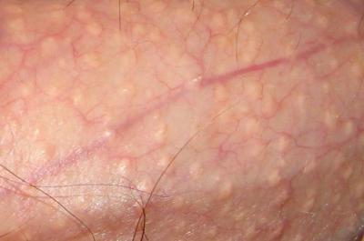 Симптомы головки пениса изменился цвет появился зуд