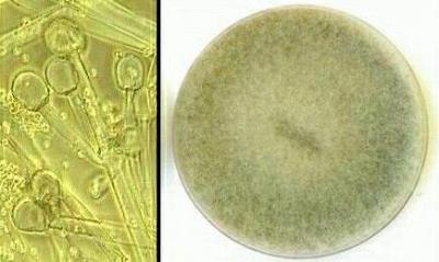 Спорами размножаются гриб мукор вирус гриппа туберкулезная палочка thumbnail