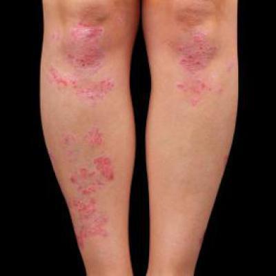 Лікування Псоріазу Шкіри Голови