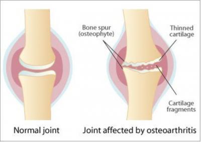 Изображение - Как вести себя при артрозе коленного сустава 588427