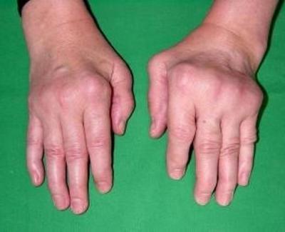 Изображение - Как вести себя при артрозе коленного сустава 588428