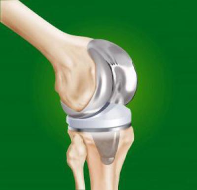 Изображение - Эндопротезирование коленного сустава травматология 600855