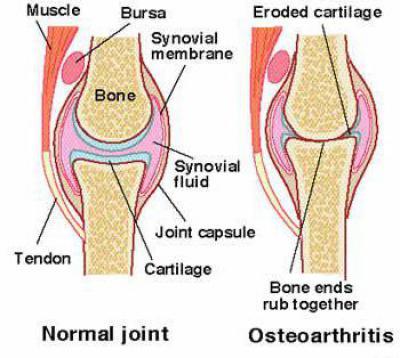 Артроз локтевого сустава лечение уколы