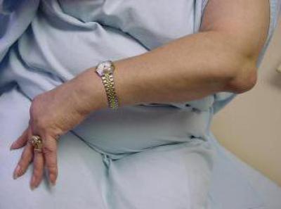 Изображение - Препараты для лечения артроза локтевого сустава 610060