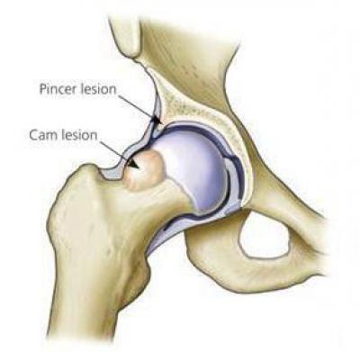Изображение - Синдром импиджмент плечевого сустава лечение 610150