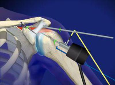 Изображение - Синдром импиджмент плечевого сустава лечение 610151