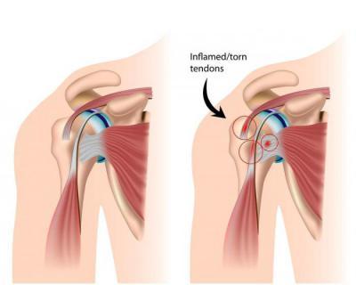 Изображение - Синдром импиджмент плечевого сустава лечение 610152