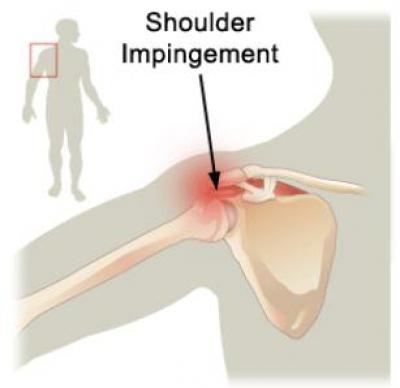 Изображение - Синдром импиджмент плечевого сустава лечение 610153