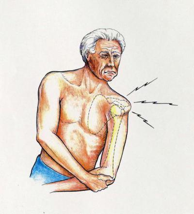Изображение - Вывих руки в плечевом суставе лечение 651801