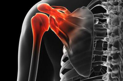 Изображение - Вывих руки в плечевом суставе лечение 651867