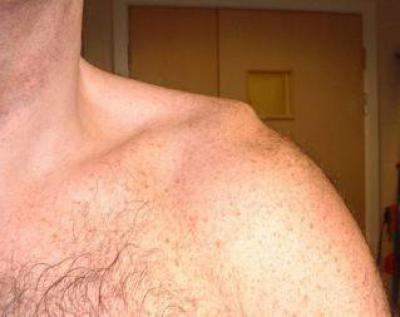 Изображение - Вывих руки в плечевом суставе лечение 651876