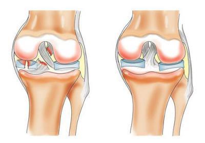 Излечение от артроза коленного сустава