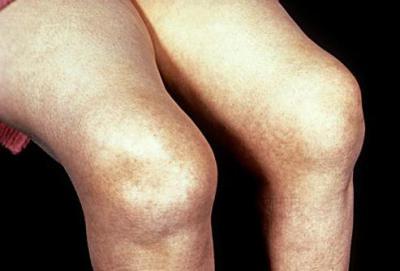 Изображение - Начинающий артроз коленного сустава 677857