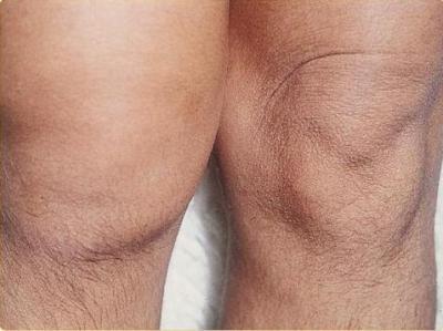 Изображение - Начинающий артроз коленного сустава 677863
