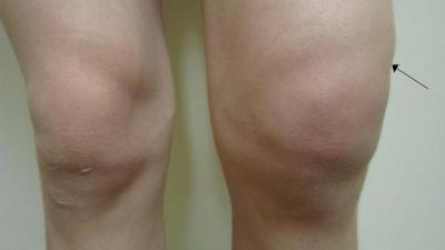Изображение - Начинающий артроз коленного сустава 677865