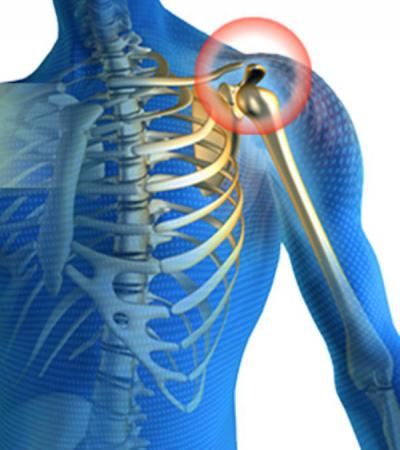 Изображение - Резкая боль в левом плечевом суставе 683199