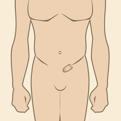 Геморрой - лечение, симптомы, причины, профилактика, диета
