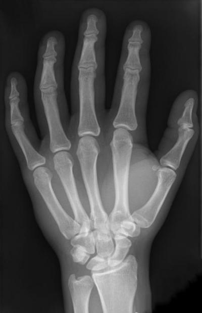 Изображение - Суставы первого пальца кисти 736127