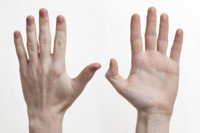 Изображение - Суставы первого пальца кисти 736156