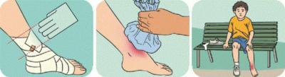 Изображение - Первая помощь при растяжении сустава 858936