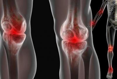 Изображение - Терафлекс для суставов отзывы больных 864984