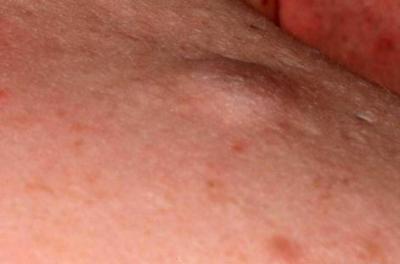 На пенисе шышечки